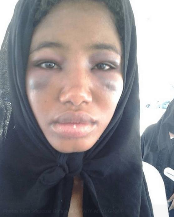 Ethiopian-maid-mistreated-in-Saudi-Arabia