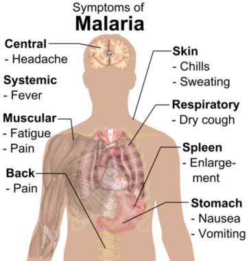 Malaria-Symptoms-1.png