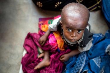 Le 19 mai 2017, un enfant souffrant de malnutrition attend des s