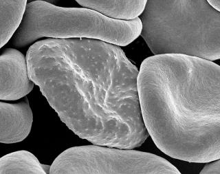 red-blood-malaria