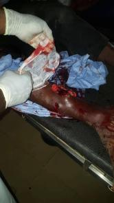 Photos of violence in Kenema. Photo credit: John Koroma