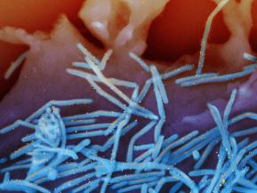 Human-Respiratory-Syncytial-Virus